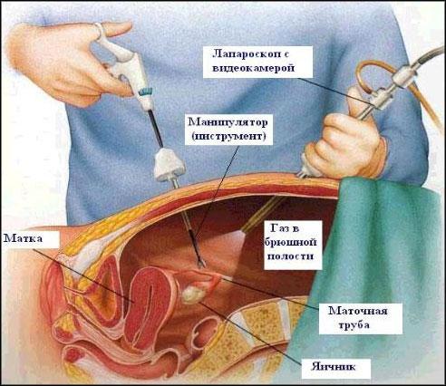 operatsiya-ginekologiya-opushenie-vlagalisha-laparoskopiya